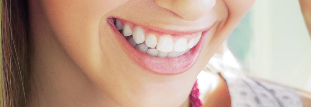 wybielanie zębów w gabinecie u dentysty