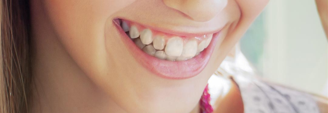 wybielanie zębów w gabinecie stomatologicznym
