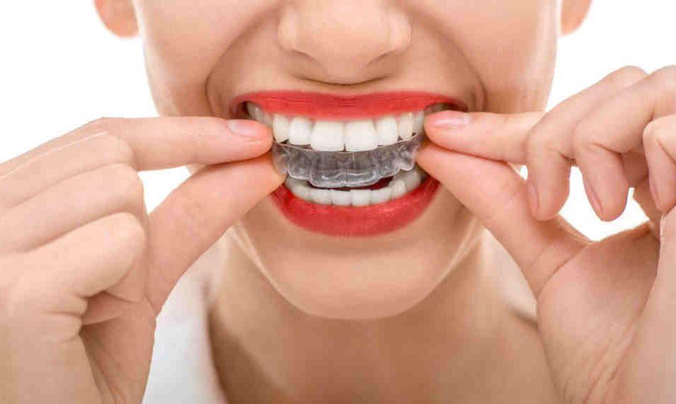 wybielanie zębów toruń - Dentysta toruń stomatologia estetyczna